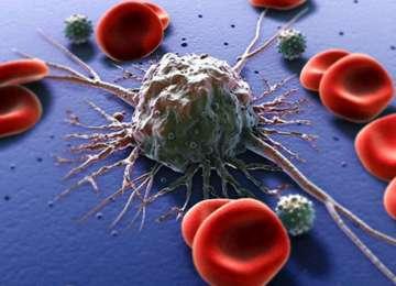ALARMANT - 2.200 de maramureșeni, bolnavi de cancer
