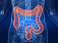 Alimentația bogată în grăsimi favorizează apariția cancerului de colon