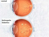 Diabetul afectează vederea