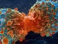 Două treimi dintre cancere sunt cauzate de factori care țin de modul de viață