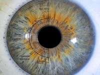 IRIDOLOGIE: Diagnostic citit prin intermediul ochilor tăi