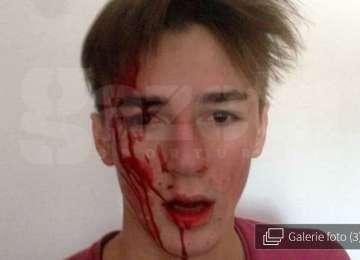 """""""M-a luat la pumni și m-a dat cu capul de masă până m-a umplut de sânge!"""", mărturia unui tânăr de 20 de ani, desfigurat de antrenor la lotul naţional al României"""