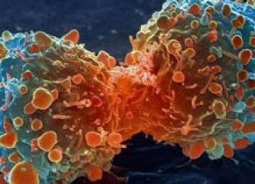 Majoritatea cazurilor de cancer sunt cauzate de stilul de viață greșit