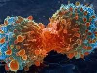 Numărul cazurilor de cancer va crește cu aproximativ 70% în următoarele două decenii