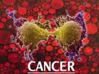 Numărul de cazuri de cancer este în creștere în România