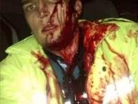 ȘOCANT – Polițist bătut puternic de către un bețiv