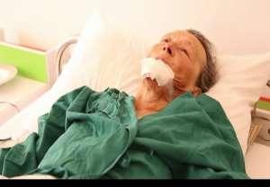 VIDEO: Femeie operată de urgenţă după ce a fost muşcată de cal. Medicii au fost nevoiţi să-i reconstruiască buza inferioară