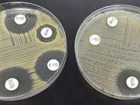 Vulnerabilitatea la infecții depinde de ora zilei când are loc contaminarea